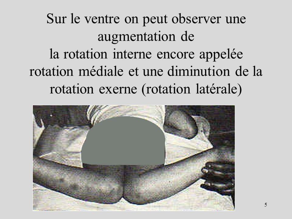 Sur le ventre on peut observer une augmentation de la rotation interne encore appelée rotation médiale et une diminution de la rotation exerne (rotati