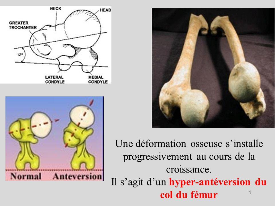 Une déformation osseuse sinstalle progressivement au cours de la croissance. Il sagit dun hyper-antéversion du col du fémur 7