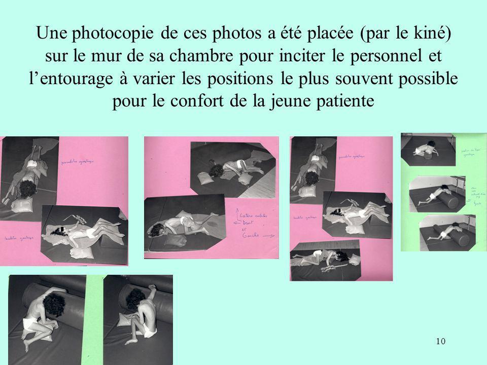 Une photocopie de ces photos a été placée (par le kiné) sur le mur de sa chambre pour inciter le personnel et lentourage à varier les positions le plu