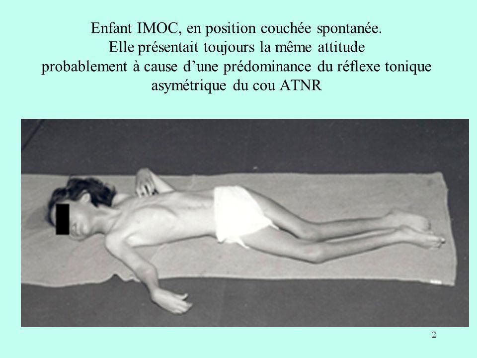 Enfant IMOC, en position couchée spontanée. Elle présentait toujours la même attitude probablement à cause dune prédominance du réflexe tonique asymét