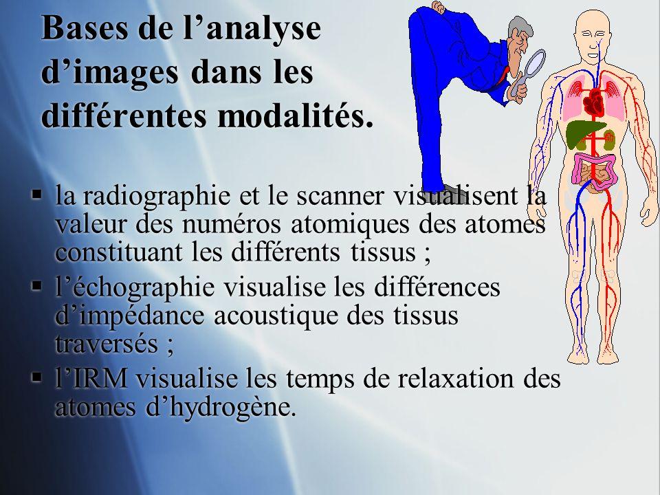 Bases de lanalyse dimages dans les différentes modalités. la radiographie et le scanner visualisent la valeur des numéros atomiques des atomes constit