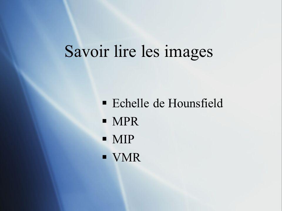 Savoir lire les images Echelle de Hounsfield MPR MIP VMR