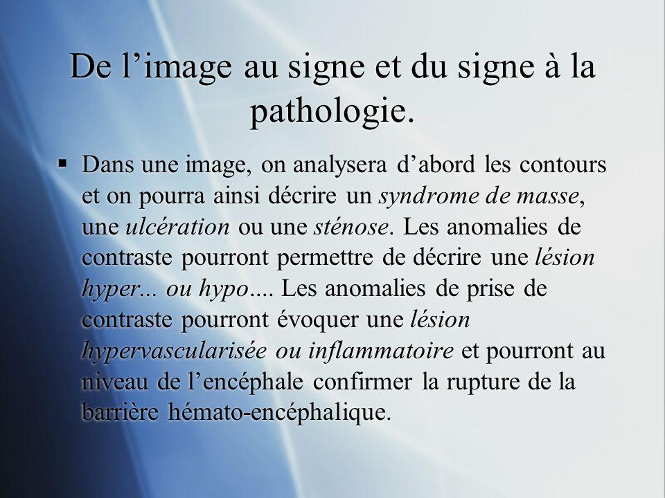 De limage au signe et du signe à la pathologie. Dans une image, on analysera dabord les contours et on pourra ainsi décrire un syndrome de masse, une