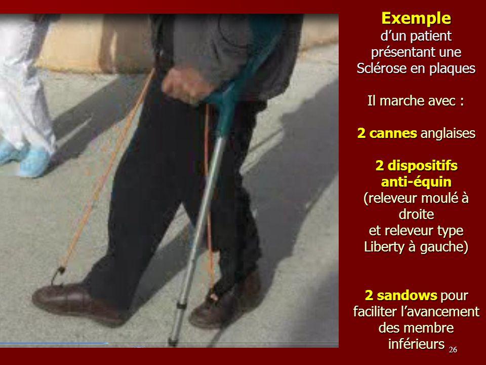 Exemple dun patient présentant une Sclérose en plaques Il marche avec : 2 cannes anglaises 2 dispositifs anti-équin (releveur moulé à droite et releve