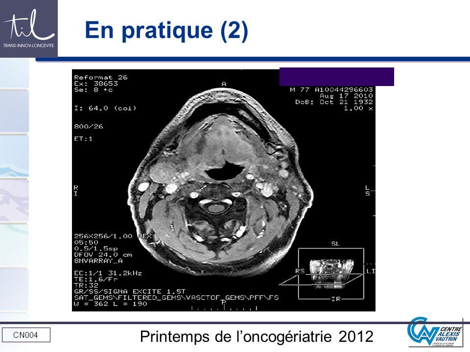CN004 Printemps de loncogériatrie 2012 En pratique (2)