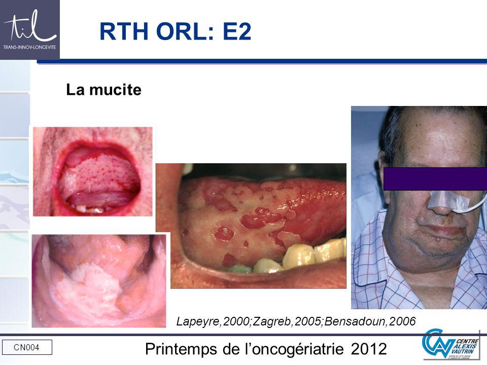 CN004 Printemps de loncogériatrie 2012 Tolérance des schémas classiques ( voire combinés et / ou accélérés) souvent médiocre (50% de modification par rapport au standard) Mucite Xérostomie Surinfections Comment améliorer la tolérance en RTH.
