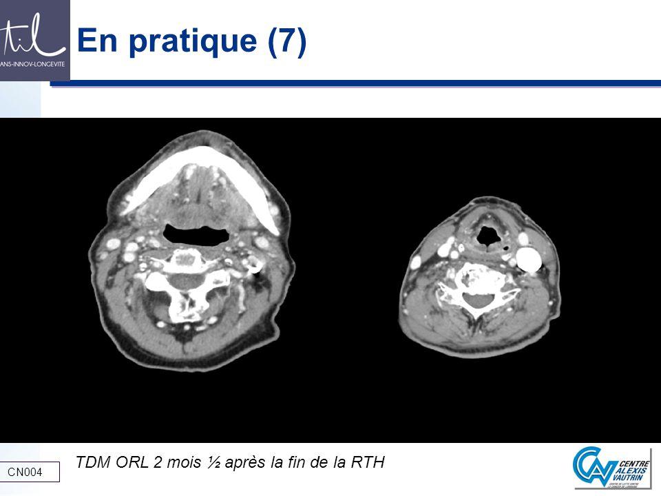En pratique (7) TDM ORL 2 mois ½ après la fin de la RTH CN004
