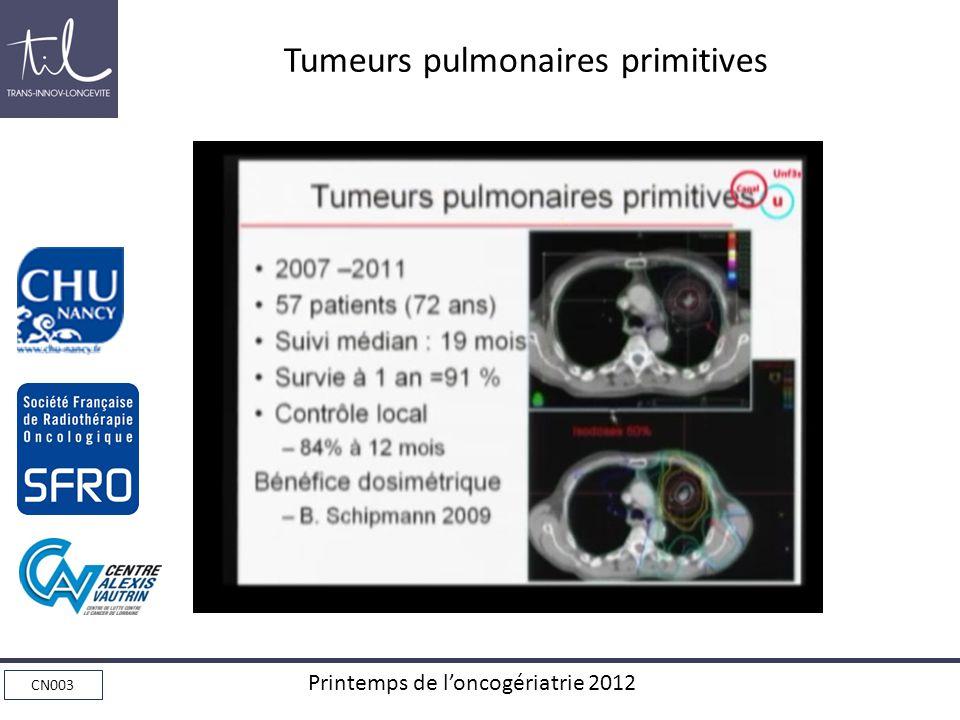 CN003 Printemps de loncogériatrie 2012 Tumeurs pulmonaires primitives