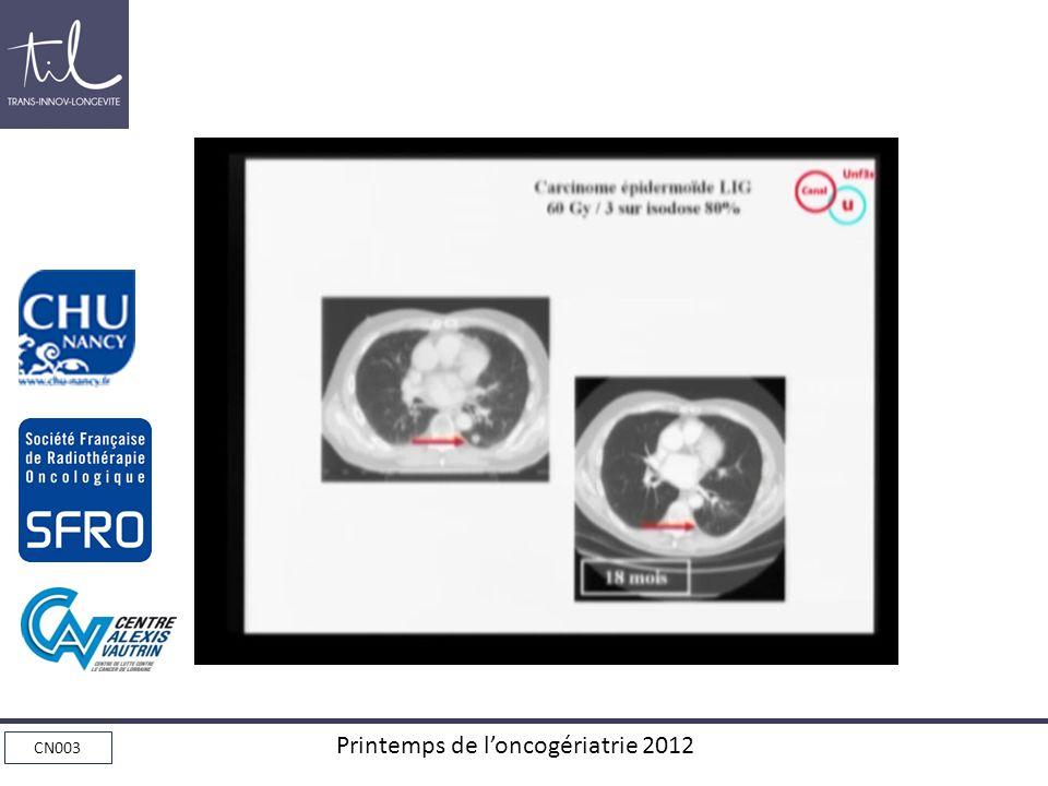 CN003 Printemps de loncogériatrie 2012
