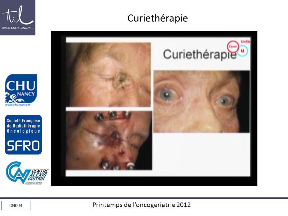 CN003 Printemps de loncogériatrie 2012 Curiethérapie