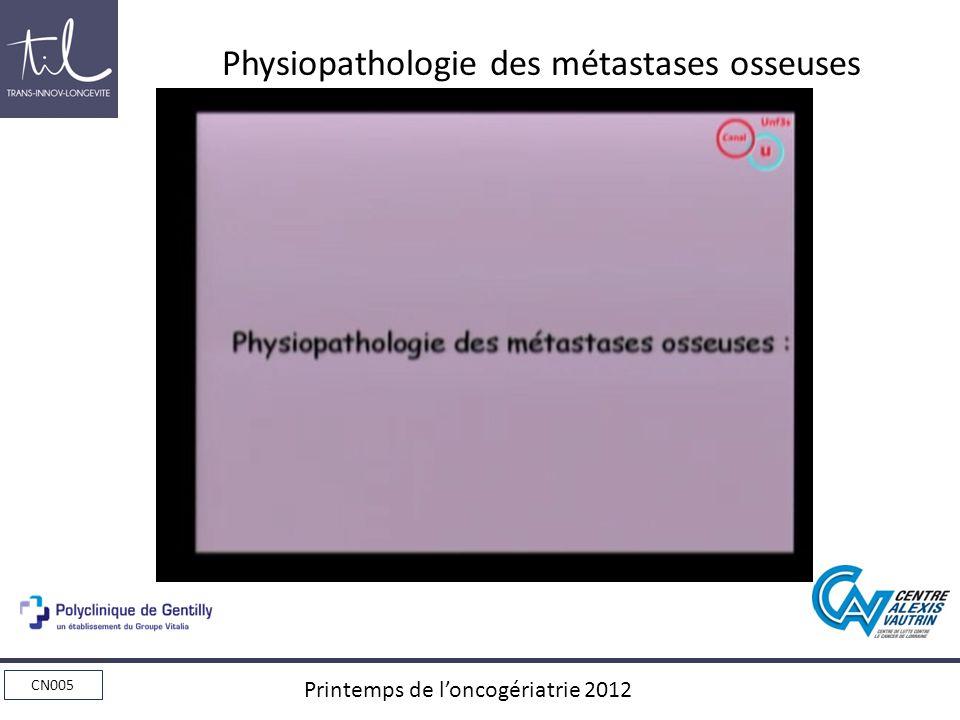 CN005 Printemps de loncogériatrie 2012 Physiopathologie des métastases osseuses