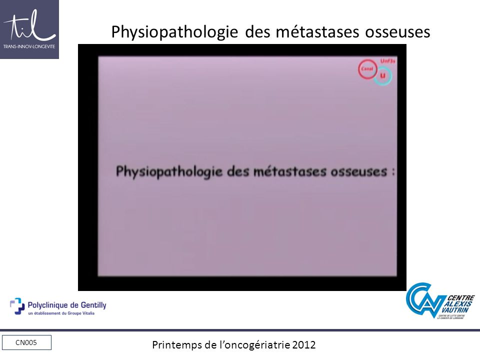 CN005 Printemps de loncogériatrie 2012 Conclusions : ZOMETA*