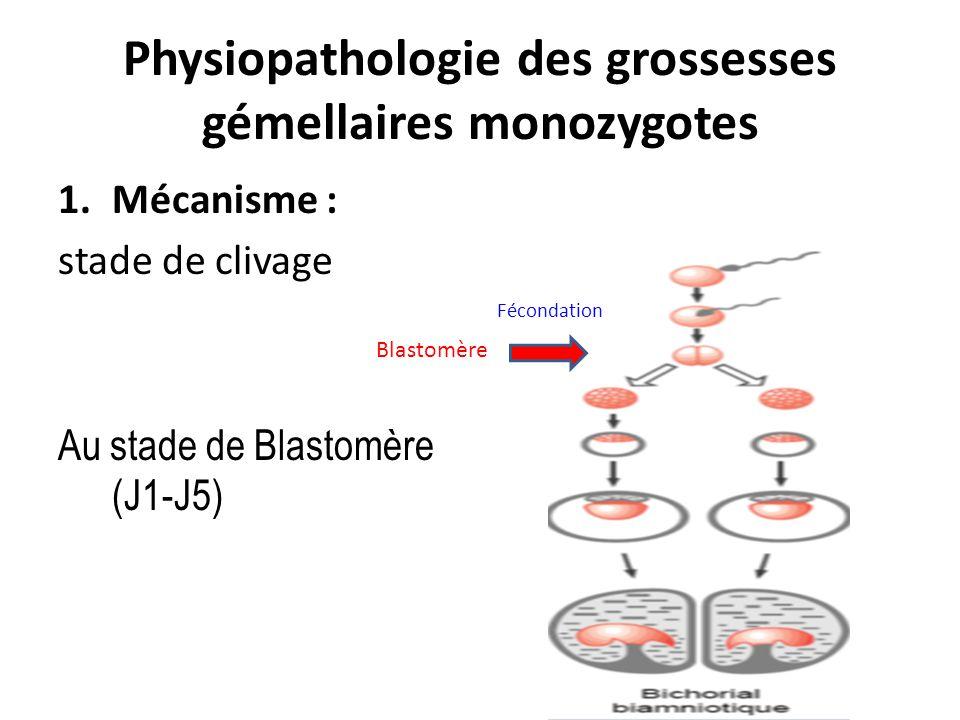 Physiopathologie des grossesses gémellaires monozygotes 1.Mécanisme : stade de clivage Au stade de Blastomère (J1-J5) Fécondation Blastomère