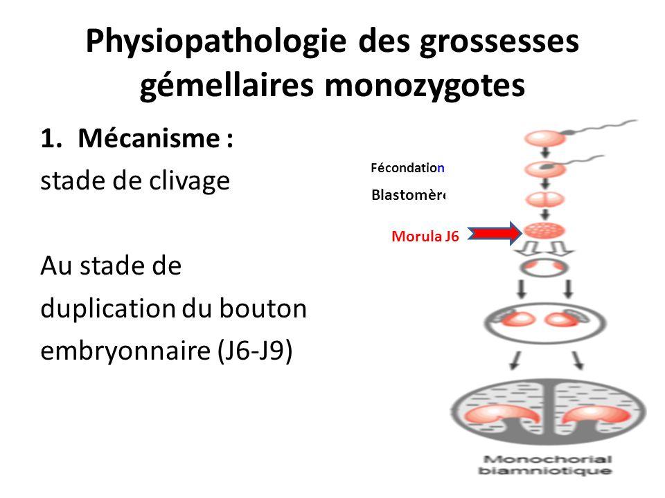 Physiopathologie des grossesses gémellaires monozygotes 1.Mécanisme : stade de clivage Au stade de duplication du bouton embryonnaire (J6-J9) Fécondat