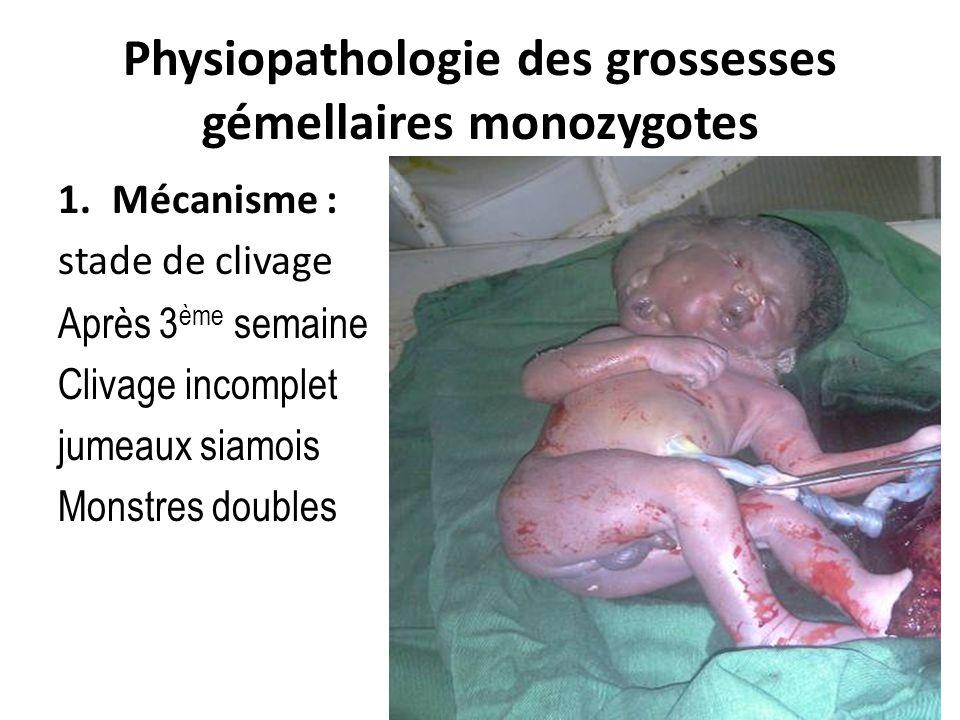 Physiopathologie des grossesses gémellaires monozygotes 1.Mécanisme : stade de clivage Après 3 ème semaine Clivage incomplet jumeaux siamois Monstres