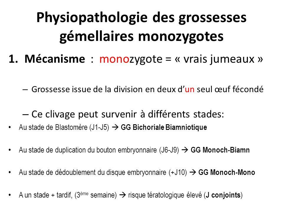 Physiopathologie des grossesses gémellaires monozygotes 1.Mécanisme : monozygote = « vrais jumeaux » – Grossesse issue de la division en deux dun seul