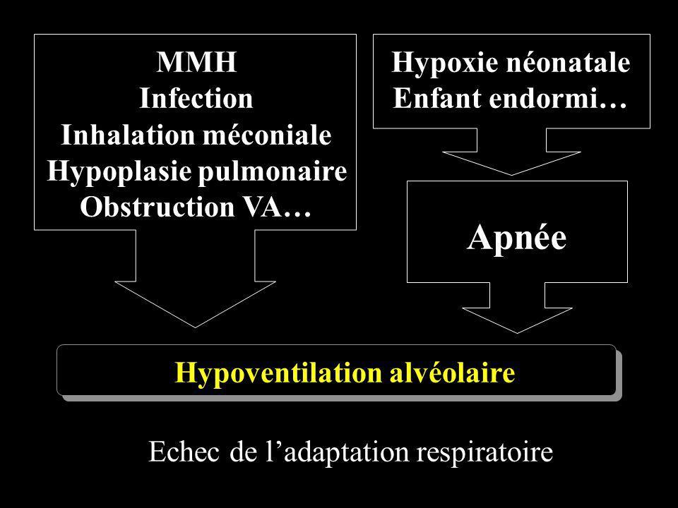 Echec de ladaptation respiratoire MMH Infection Inhalation méconiale Hypoplasie pulmonaire Obstruction VA… Hypoxie néonatale Enfant endormi… Apnée Hyp