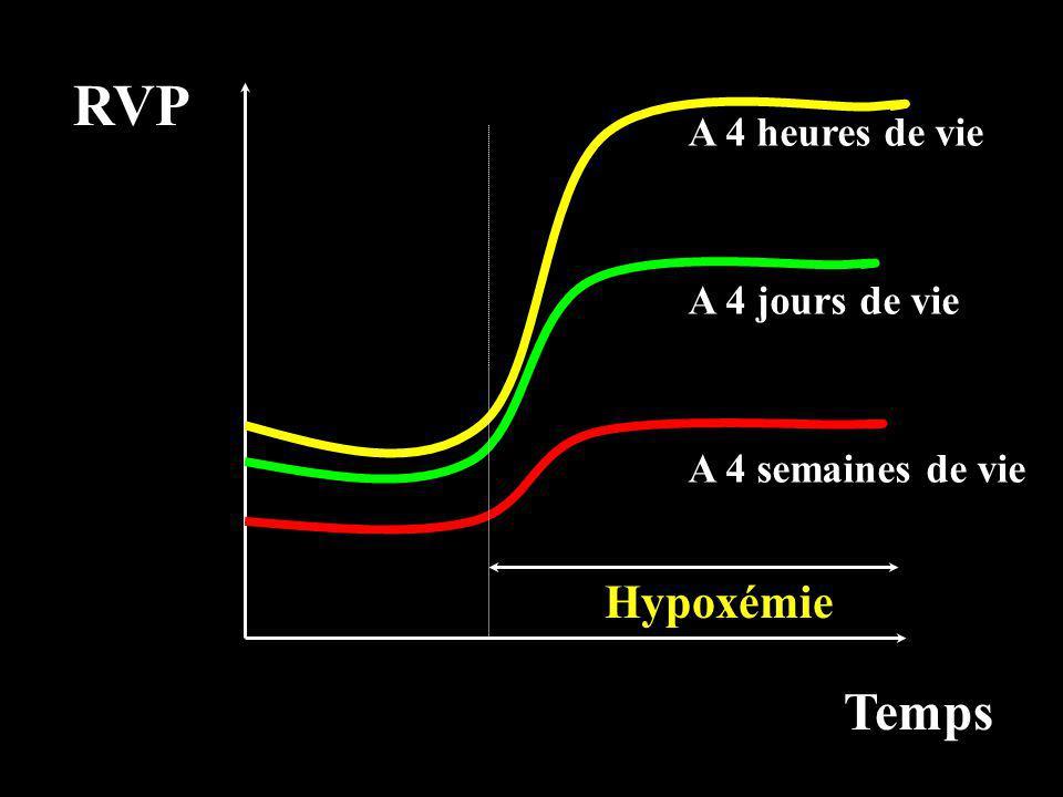 RVP Temps A 4 semaines de vie A 4 jours de vie A 4 heures de vie Hypoxémie
