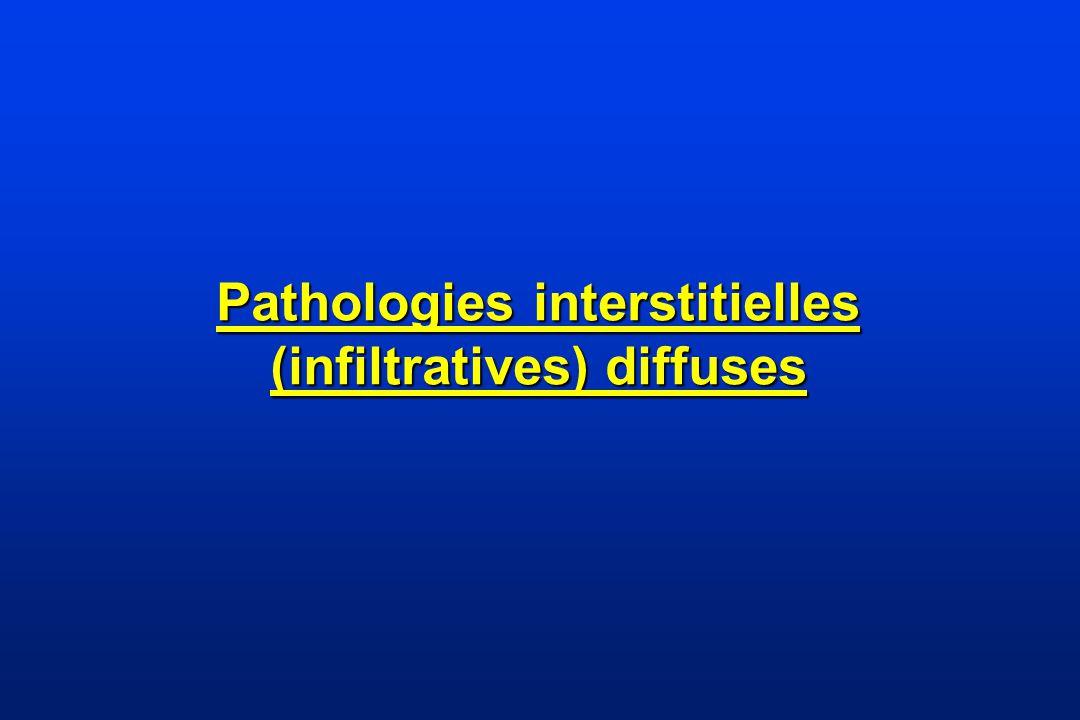 Anatomo-pathologie FPI : UIP Fibrose hétérogène -dans lespace (zones très pathologiques et zones saines) -dans le temps (différents « âges » dévolution des lésions) foyers fibroblastiques sous épitheliaux poumon en rayon de miel en phase terminale