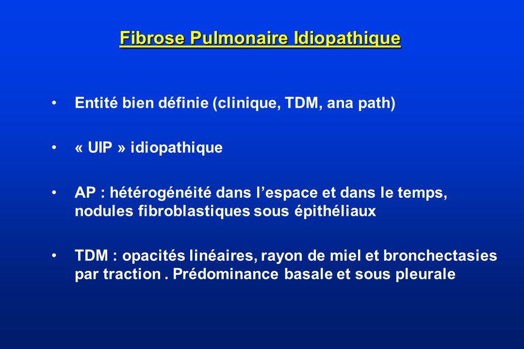 Fibrose Pulmonaire Idiopathique Entité bien définie (clinique, TDM, ana path) « UIP » idiopathique AP : hétérogénéité dans lespace et dans le temps, n