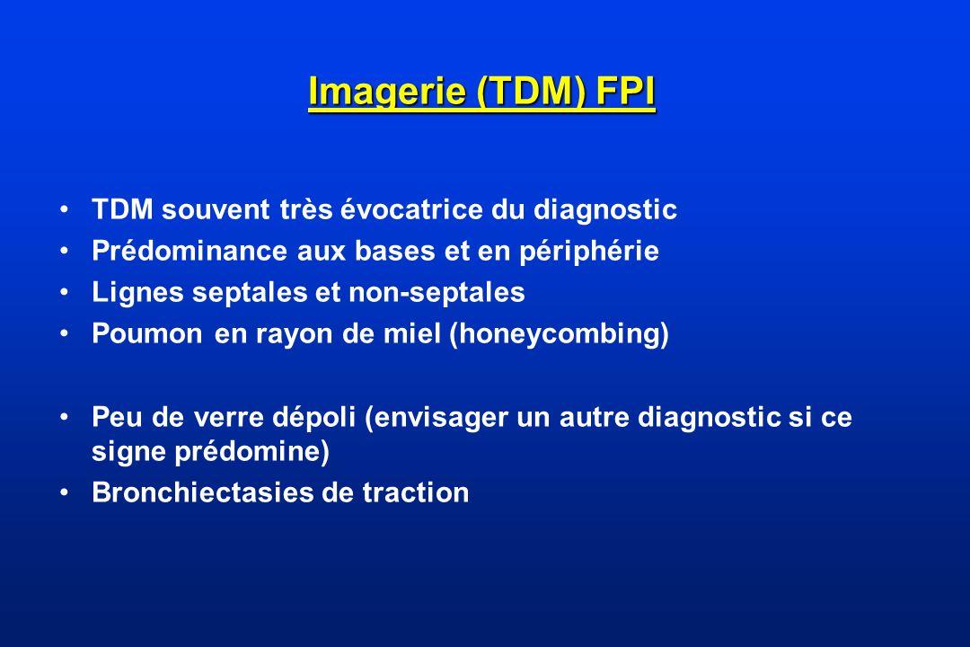 Imagerie (TDM) FPI TDM souvent très évocatrice du diagnostic Prédominance aux bases et en périphérie Lignes septales et non-septales Poumon en rayon d