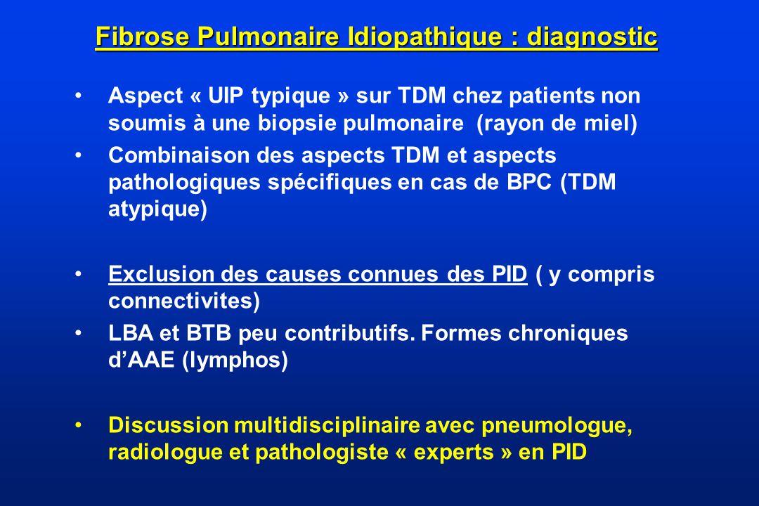 Fibrose Pulmonaire Idiopathique : diagnostic Aspect « UIP typique » sur TDM chez patients non soumis à une biopsie pulmonaire (rayon de miel) Combinai