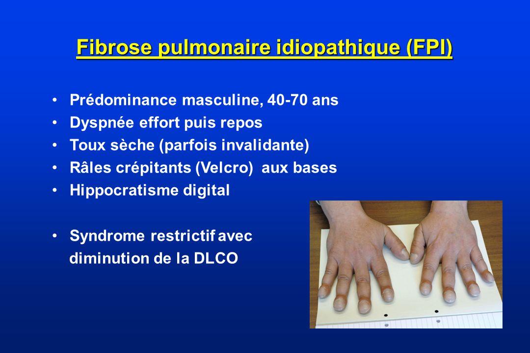 Fibrose Pulmonaire Idiopathique : diagnostic Aspect « UIP typique » sur TDM chez patients non soumis à une biopsie pulmonaire (rayon de miel) Combinaison des aspects TDM et aspects pathologiques spécifiques en cas de BPC (TDM atypique) Exclusion des causes connues des PID ( y compris connectivites) LBA et BTB peu contributifs.