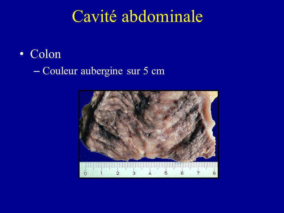 Colon – Couleur aubergine sur 5 cm Cavité abdominale