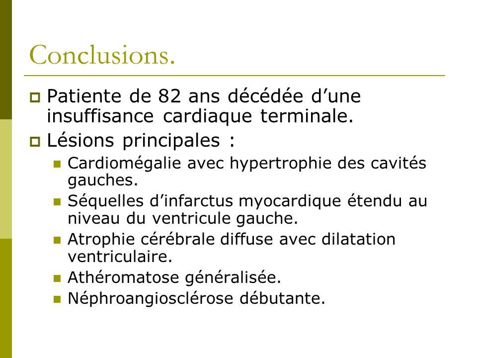 Conclusions. Patiente de 82 ans décédée dune insuffisance cardiaque terminale. Lésions principales : Cardiomégalie avec hypertrophie des cavités gauch