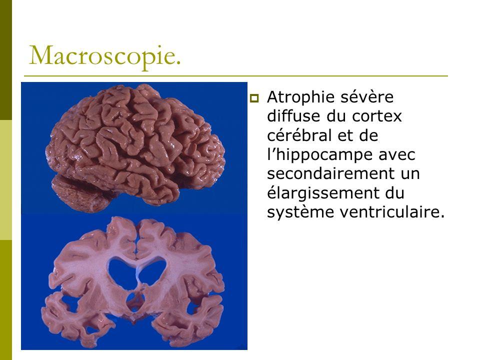 Macroscopie. Atrophie sévère diffuse du cortex cérébral et de lhippocampe avec secondairement un élargissement du système ventriculaire.