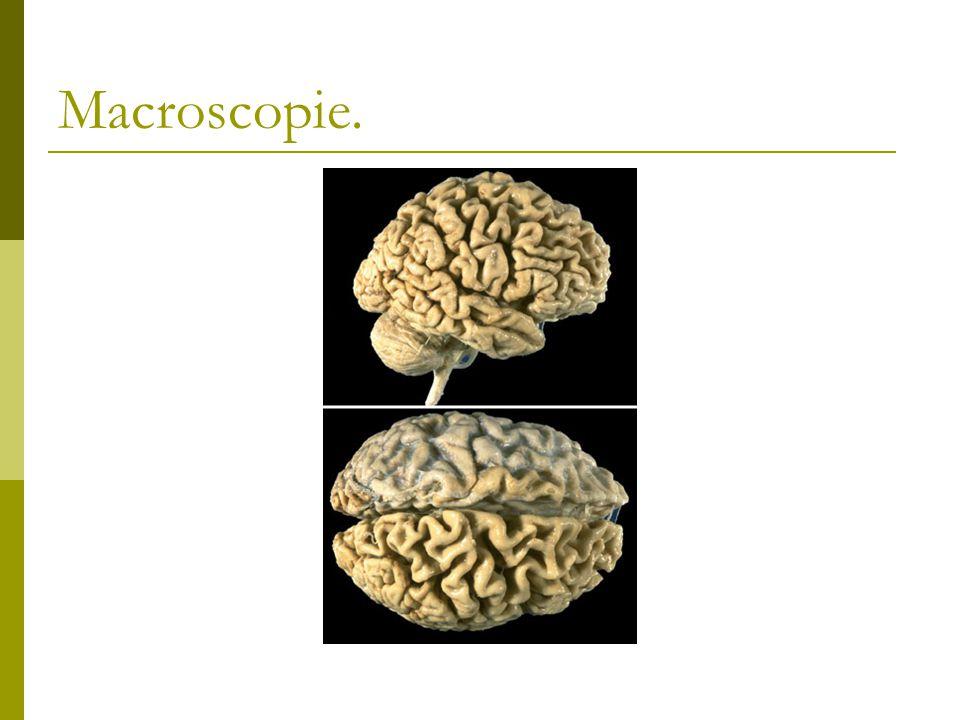Macroscopie.