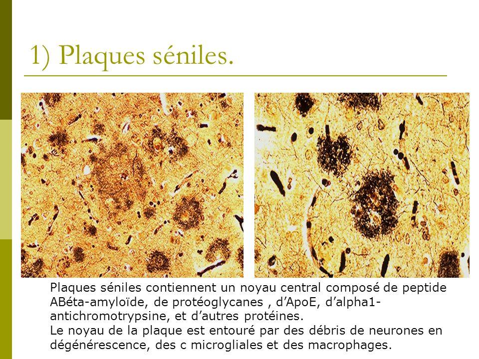 1) Plaques séniles. Plaques séniles contiennent un noyau central composé de peptide ABéta-amyloïde, de protéoglycanes, dApoE, dalpha1- antichromotryps