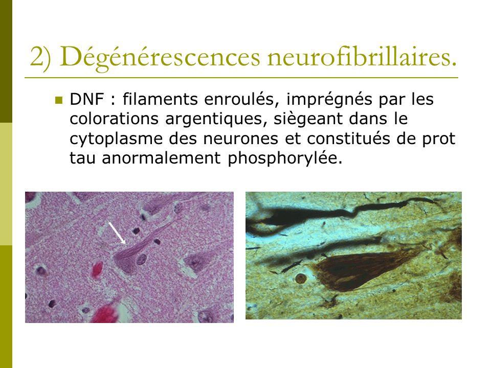 2) Dégénérescences neurofibrillaires. DNF : filaments enroulés, imprégnés par les colorations argentiques, siègeant dans le cytoplasme des neurones et