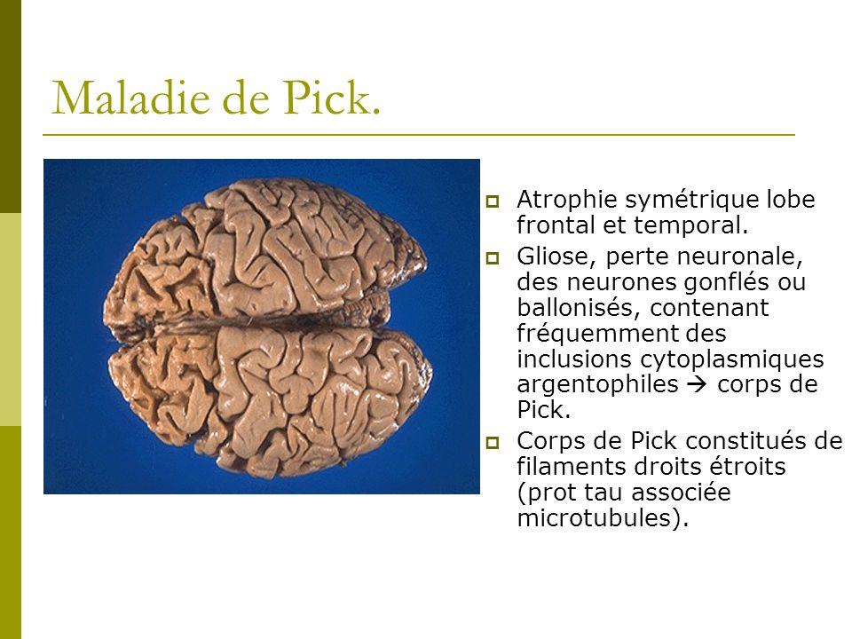 Maladie de Pick. Atrophie symétrique lobe frontal et temporal. Gliose, perte neuronale, des neurones gonflés ou ballonisés, contenant fréquemment des