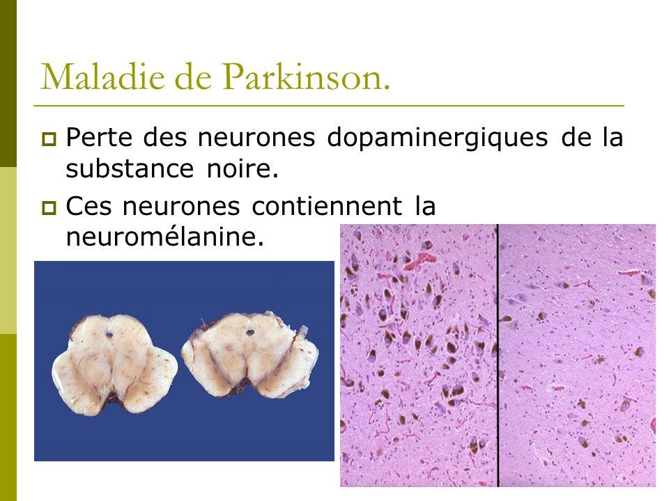 Maladie de Parkinson. Perte des neurones dopaminergiques de la substance noire. Ces neurones contiennent la neuromélanine.