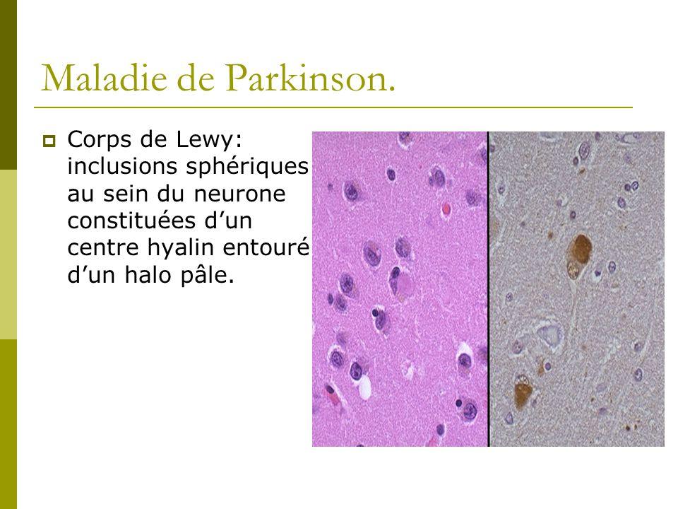 Maladie de Parkinson. Corps de Lewy: inclusions sphériques au sein du neurone constituées dun centre hyalin entouré dun halo pâle.
