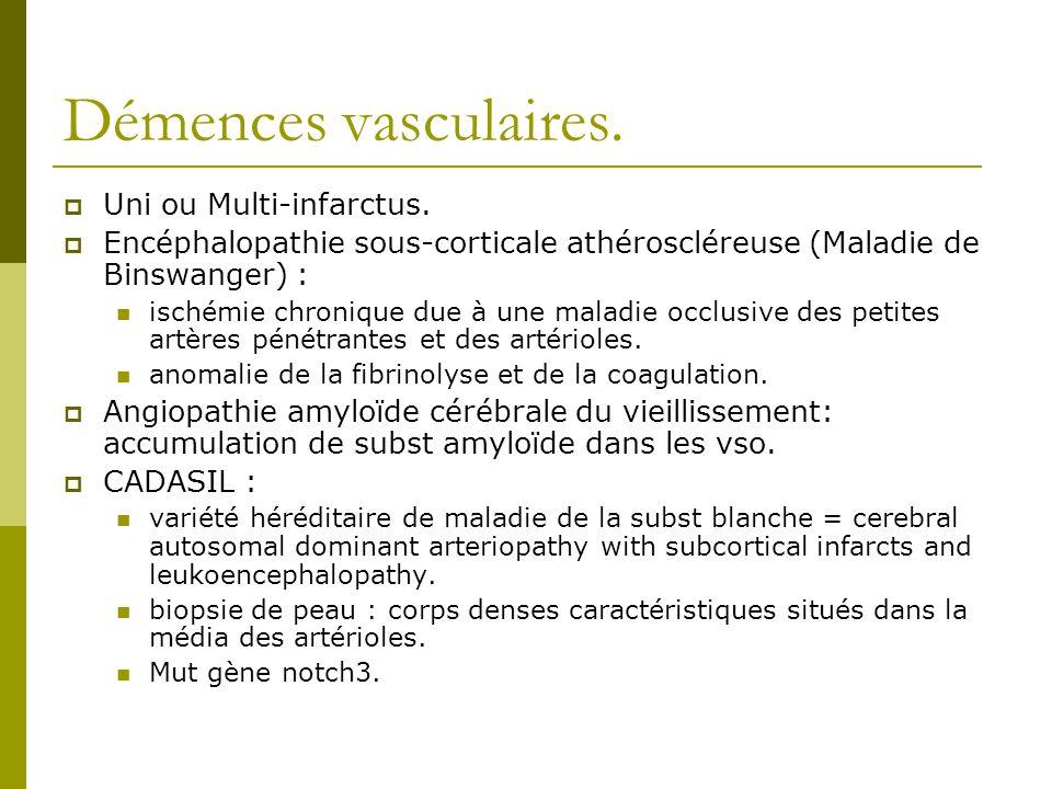 Démences vasculaires. Uni ou Multi-infarctus. Encéphalopathie sous-corticale athéroscléreuse (Maladie de Binswanger) : ischémie chronique due à une ma