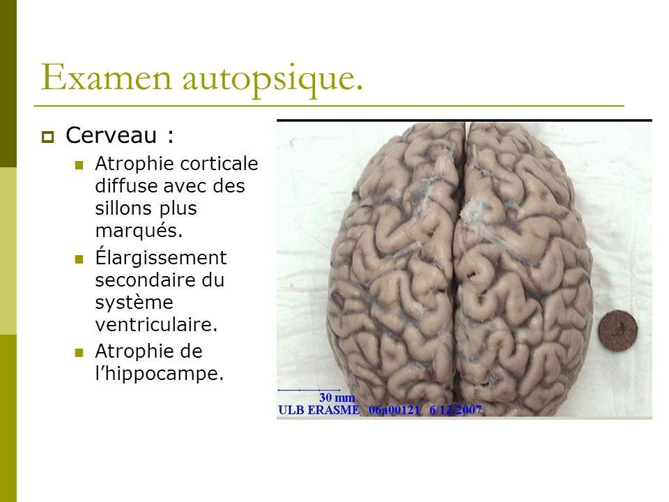 Examen autopsique. Cerveau : Atrophie corticale diffuse avec des sillons plus marqués. Élargissement secondaire du système ventriculaire. Atrophie de