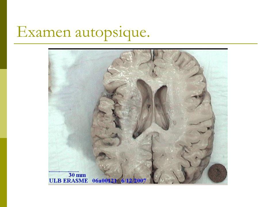 Examen autopsique.