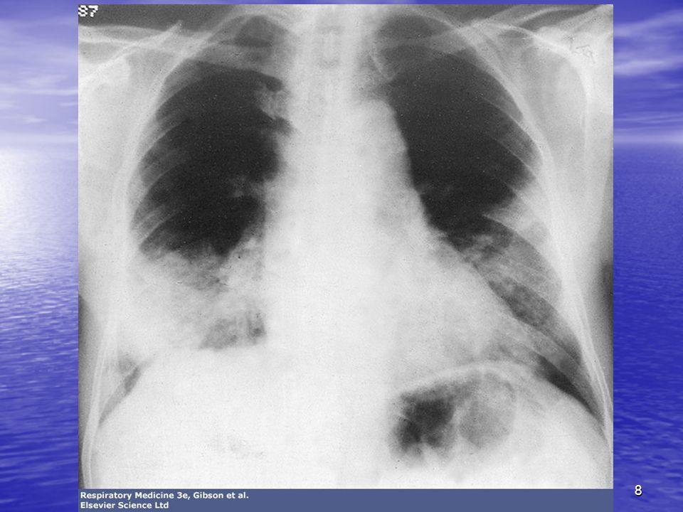 9 Etude épidémiologique Risque relatif de lapparition dun cancer bronchique:7 pour une consommation de 1 à 7 cigarettes /j Risque relatif de lapparition dun cancer bronchique:7 pour une consommation de 1 à 7 cigarettes /j RR=12 pour 15 à 24 cigarettes/j RR=12 pour 15 à 24 cigarettes/j RR=24 pour 25 cigarettes/j RR=24 pour 25 cigarettes/j