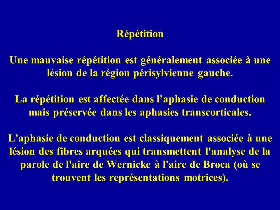 Répétition Une mauvaise répétition est généralement associée à une lésion de la région périsylvienne gauche. La répétition est affectée dans laphasie
