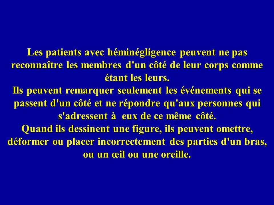 Les patients avec héminégligence peuvent ne pas reconnaître les membres d'un côté de leur corps comme étant les leurs. Ils peuvent remarquer seulement