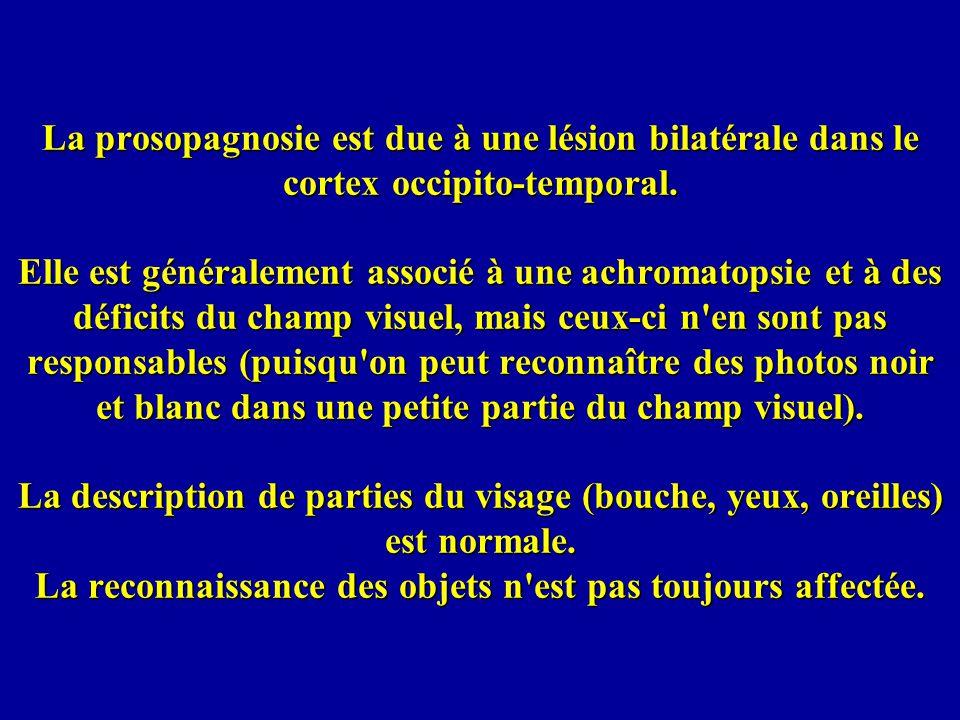 La prosopagnosie est due à une lésion bilatérale dans le cortex occipito-temporal.