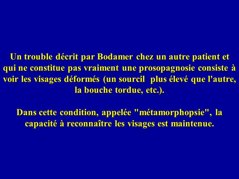 Un trouble décrit par Bodamer chez un autre patient et qui ne constitue pas vraiment une prosopagnosie consiste à voir les visages déformés (un sourcil plus élevé que l autre, la bouche tordue, etc.).