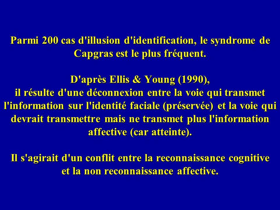 Parmi 200 cas d illusion d identification, le syndrome de Capgras est le plus fréquent.