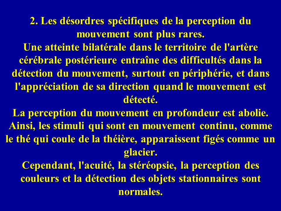 2.Les désordres spécifiques de la perception du mouvement sont plus rares.