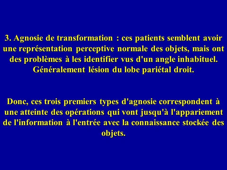 3. Agnosie de transformation : ces patients semblent avoir une représentation perceptive normale des objets, mais ont des problèmes à les identifier v