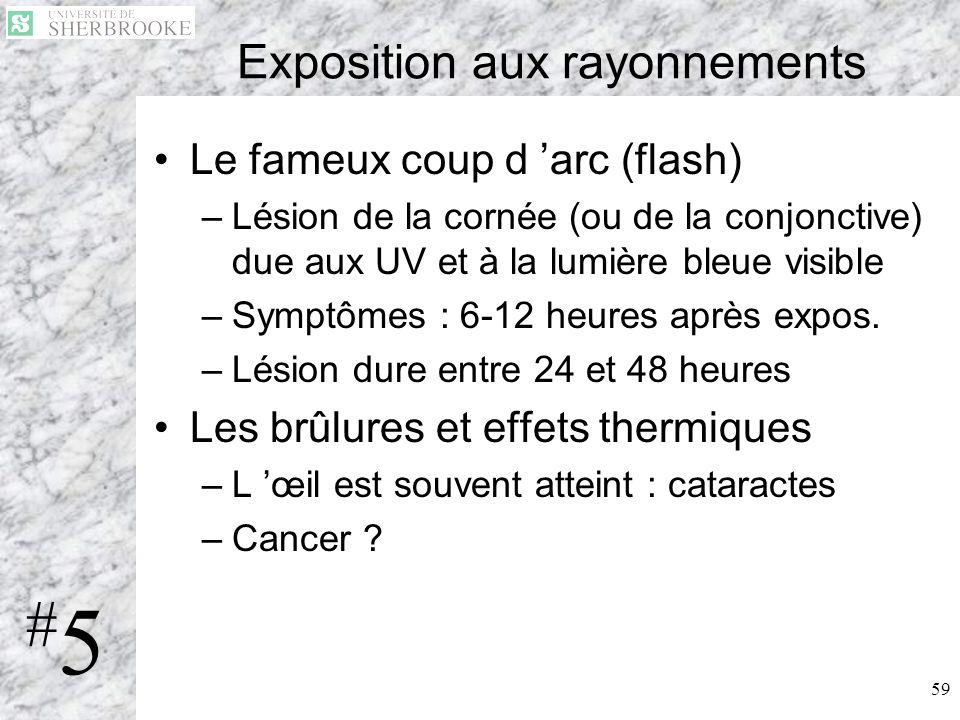 59 Exposition aux rayonnements Le fameux coup d arc (flash) –Lésion de la cornée (ou de la conjonctive) due aux UV et à la lumière bleue visible –Symp