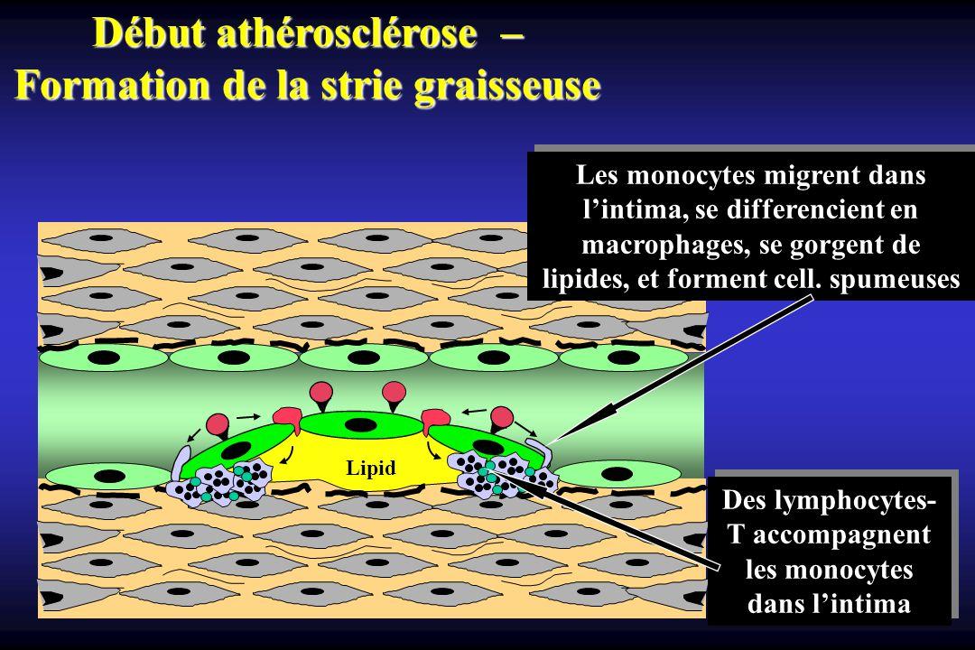 Lipid Les monocytes migrent dans lintima, se differencient en macrophages, se gorgent de lipides, et forment cell. spumeuses Début athérosclérose – Fo