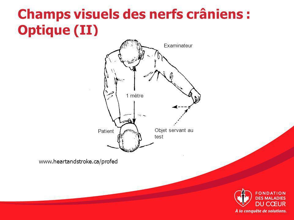 Champs visuels des nerfs crâniens : Optique (II) www.heartandstroke.ca/profed Examinateur 1 mètre Patient Objet servant au test